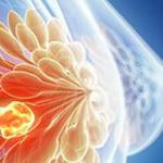 Nel sud Italia la mortalità per cancro al seno è del 6% maggiore che al nord